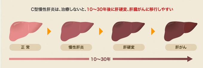 C型慢性肝炎は、治療しないと、10〜30年後に肝硬変、肝臓がんに移行しやすい